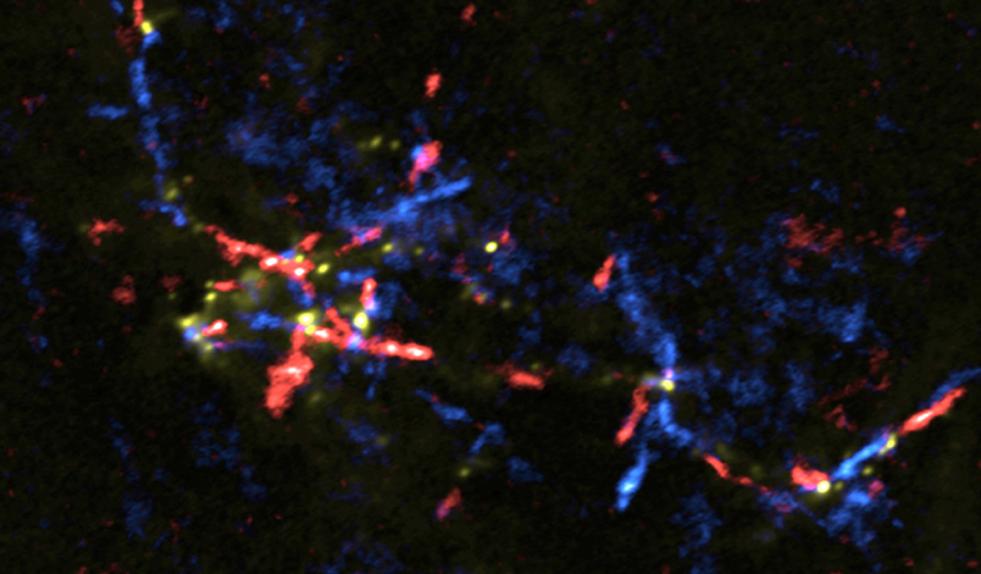 Auch der Kern der Milchstraße gebiert Sterne